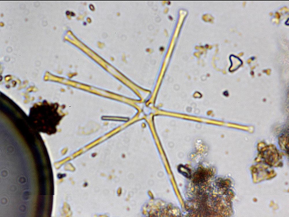 GALLERY-Asterionella-colony